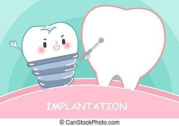 implanttion, conceito, dente