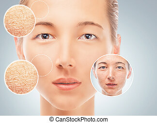 Improvement of female facial skin