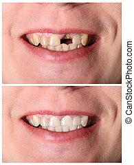 incisivo, diente, restauración, antes y después, tratamiento