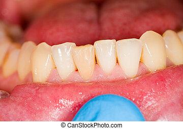 incisors, fogászati, fotográfia, legyőz