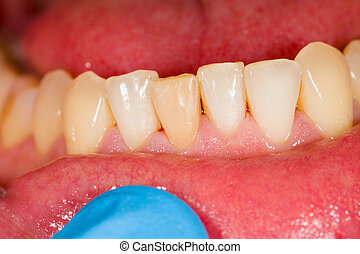 Incisors - Lower partial teeth of patient at the dentist.