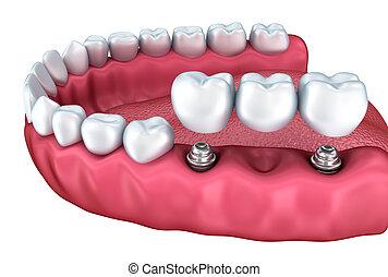 inférieur, dentaire, implants, gros plan, isolé, dents, blanc, vue