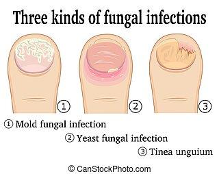 infecciones, fungal, clases, tres