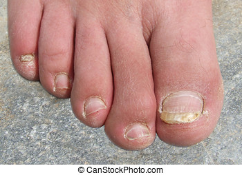 Infected Toenails - Infected ugly toenail