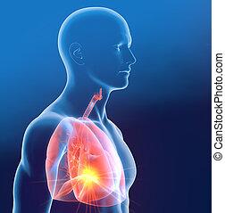 infiammazione, illustrazione, pneumonia, polmone, 3d