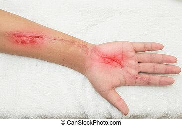 inflamación, antebrazo, herida