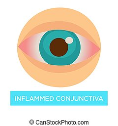 Inflamed conjunctiva conjuntivitis sore eye medicine and...