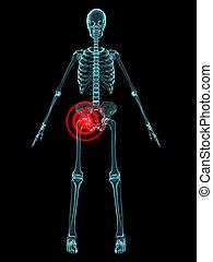 inflamed hip