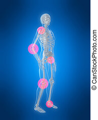 inflamed joints - 3d rendered illustration of a human ...