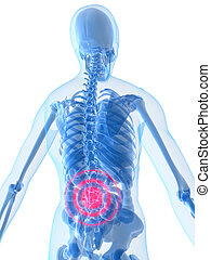 inflamed lower back - 3d rendered illustration of a human...