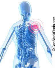 inflamed shoulder