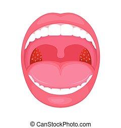 inflammation., fertőzés, mandula, torok, bacterial
