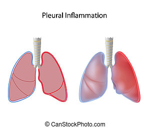 Inflammation of pleura, pleurisy, eps10