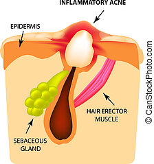 Inflammatory comedones. acne. The structure of the skin. Infographics. Vector illustration on isolated background