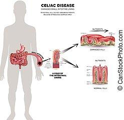 info, affisch, celiac, sjukdom