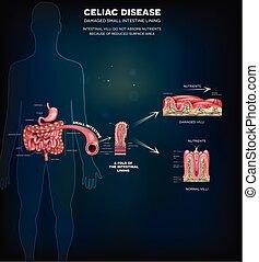 info, plakat, celiac, krankheit