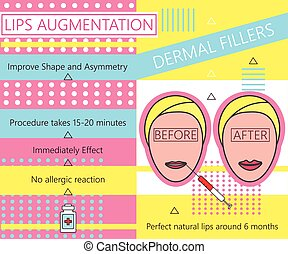 infographic, について, dermal, illustration., beauty., augmentation., fillers., 唇, ベクトル, cosmetology.