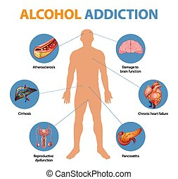 infographic, addison's, doença, sintomas
