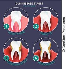 infographic, etapas, enfermedad, goma, dientes
