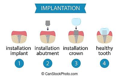 infographics dental implantation. Process of implant installation.