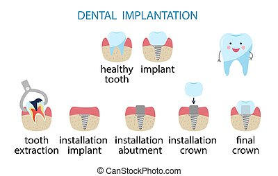 infographics dental implantation. Stages of implant installation.