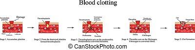 infographics., vektor, blod, illustration, clotting.