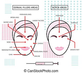 Infograthic poster about dermal fillers and botox ares....