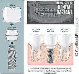 información, dental, estructura, infographic, cartel, implante