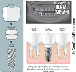 information, affiche, dentaire, infographic, implant, ...