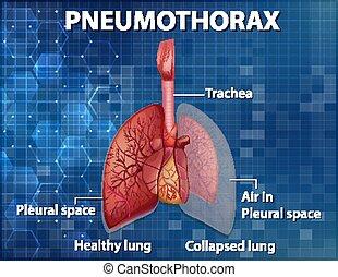 Informative illustration of Pneumothorax illustration