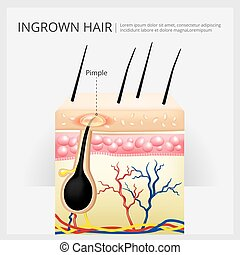 Ingrown Hair Structure Vector Illustration