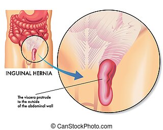 inguinal hernia - medical illustration of the effects of the...
