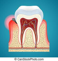 inizio, umano, malattia, gengiva, denti