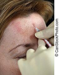 injeção botox