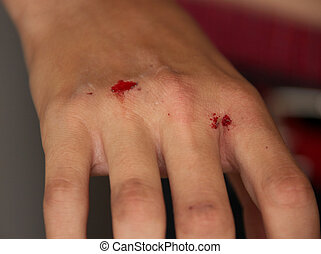 Injured Bleeding Hand of a Young Boy