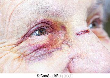 Injured elderly woman