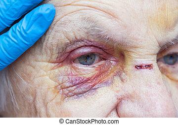Injured elderly woman crying