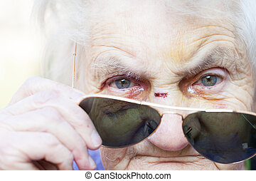 Injured elderly woman's face