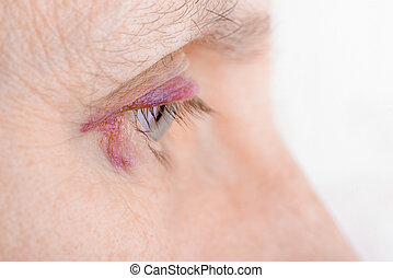 Injured eye due to capillary rupture - Woman's eye injured...