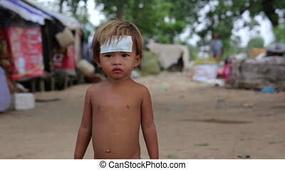 injured kid in asian slum