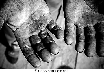 Injured open palms - Worker is showing his chapped hands,...
