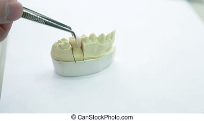 Inspection artificial crown to girth of neck of tooth,...