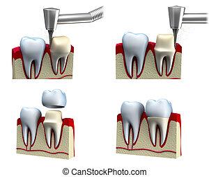 instalación, dental, corona, proceso