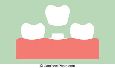 installation, processus, dentaire, couronne, dents, changement
