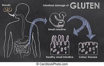 intenstinaal, beschadigen, van, gluten