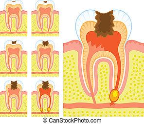 intern, structuur, van, tand