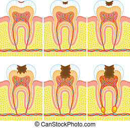 Some illustrations of an internal structure of tooth: caries and decay.