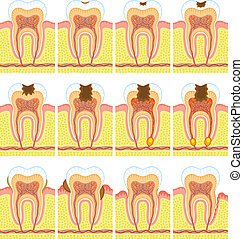 Some illustrations of an internal structure of tooth.
