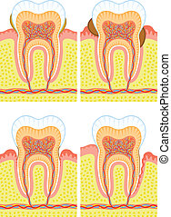 Some illustrations of an internal structure of tooth: dental deposit, dental calculus, decay.