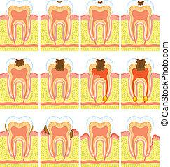 interno, dente, estrutura